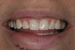 Figure 2  Preoperative smile after restoring shape and contours with composite resin.
