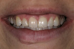 Figure 3  Preoperative smile 1 month after the initial trauma. Note the lower value of tooth No. 8.