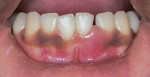 Pretreatment close-up view of lower anterior teeth showing open contact, incisal chip, swelling, and lack of pigmentation.