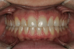 Figure 11  After internal bleaching and before external whitening.