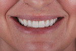 Postoperative full smile photograph displaying the esthetic result achieved.