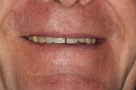 Fig 4. The diastema between teeth Nos. 8 and 9 is revealed in the initial full-smile photograph.