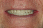 Fig 15. Final full smile; note the closure of the diastema between teeth Nos. 8 and 9, which was achieved by addressing occlusion.