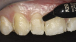Figure 6  Application of the higher-chroma base shade A2B prevented the darker color of the affected dentin from showing through.
