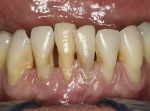 Figure 7   Preoperative clinical photograph of hopelessly involved symptomatic teeth.
