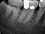 Preoperative radiograph of tooth No. 31, which was diagnosed with SIP and symptomatic apical periodontitis, in a patient with severe preoperative pain. After an IANB (3.4 mL of 2% lidocaine with epinephrine 1:100,000) and buccal infiltration (1.7 mL of 4% articaine with epinephrine 1:100,000) were performed, a false negative thermal test was noted upon instrumentation of the pulp chamber; therefore, an intrapulpal injection (0.9 mL of 3% mepivacaine) was administered.