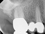Preoperative radiograph of tooth No. 3 with a diagnosis of SIP and symptomatic apical periodontitis. After an initial infiltration (3.4 mL of 2% lidocaine with epinephrine 1:100,000), an additional infiltration (1.7 mL of 0.5% bupivacaine with epinephrine 1:200,000), and a PDL injection (0.6 mL of 3% mepivacaine), the thermal test demonstrated insufficient pulpal anesthesia; therefore, nitrous oxide was administered, which yielded a negative pulpal response.