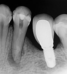 Root canal dressing with calcium hydroxide in place for 15 days.