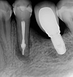 Immediate postoperative radiograph of the root canal system filled with bioceramic root canal sealer and gutta-percha.