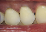 Figure 6   Simplifying Class 5 techniques with one to three layering applications of A3 F03 to create lifelike restorations.