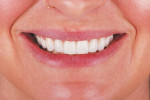 Fig 12. The postoperative full-smile and full face photographs display the esthetic result achieved.