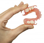 Figure 1  THE SUNFLEX SOLUTION (1. and 2.) A Sunflex bilateral partial denture.
