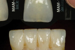 Figure 12  Anterior translucency modification was checked on the incisal third using the Chairside Shade Guide.