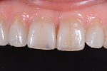 Fig 3. Retracted 1:1 view showed the translucent incisal third and Class 5 composite restorations.