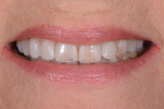Fig 2. The full-smile 1:2 photograph further demonstrated the worn, thinning tooth structure.