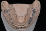 Fig 6 through Fig 9. To ensure that the new maxillary provisional restorations would fit the mounting, composite was spot-etched into place using the template of the mandibular arch.