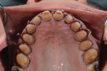 Fig 10. The maxillary teeth are prepared according to the wax-up using PVS reduction guides.