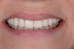 Fig 11 and Fig 12. The provisionals in place after several weeks in the new OVD. Note the spot-bonded composite visible on teeth Nos. 21, 28, and 29.