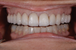 Fig 17 and Fig 18. A bisque bake try-in is completed to evaluate the esthetic outcome and allow the patient to confirm the desired shape and color.