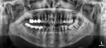 Fig 1. Preoperative panographic radiograph revealing missing tooth No. 15 and extent of localized periodontitis at tooth No. 16.