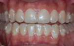 Fig 1. Case 1. Patient before bleaching with clear aligner trays in place.