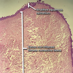 Fig 8. Photomicrograph at low power demonstrated stratified squamous epithelium overlying abundant, dense, non-inflamed fibrous connective tissue.