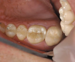 Figure 7  The shade match of the MZ crown on tooth No. 3 has become more predictable.