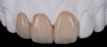 The innovative, multilayer technology of KATANA Zirconia discs from Kuraray Noritake is specialized for fabricating full-contour zirconia crowns. It is available in a full shade range, exhibiting natural color gradiation and high translucency, helping dental professionals achieve higher levels of esthetics.