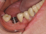 Figure 11  A metal abutment for a MZ crown.