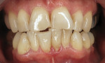 Pretreatment retracted smile photograph, demonstrating how the lower anterior teeth had worn and chipped the opposing upper anterior teeth.
