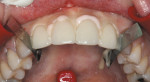 Figure 8  Veneers seated; pink opaque cement on the centrals and YRU on the laterals.