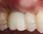 Fig 15. Three years after placement, the final restoration remained esthetic and functional.