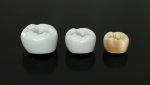 FIG 2. The processing steps of Lithoz zirconia crowns include, from left, the green body; the white body; and the finished crown after staining, glazing, and firing.