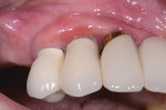 Fig 7. At 6 months there was some gingival recession, but inflammation was still present beyond what was anticipated.