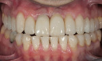 Figure 12  Postoperative photograph with bonded full-contour restorations in place on the posterior teeth and incisally layered anterior teeth.