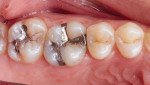 Pretreatment image of failed amalgam restorations on teeth Nos. 14 and 15.