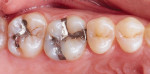 Side-by-side comparison of the pretreatment failed amalgam restorations and the final polished composite restorations.