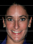 Figure 1  The frontal framework was based on facial analysis involving the horizontal plane, vertical plane, the relationship of thirds, and strong side versus weak side.