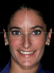 Figure 2  Vertical and horizontal plane making up the facial