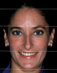 Figure 6  Face divided into thirds to evaluate abnormalities.