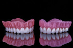 Fig 1. Printed (left) and milled (right) dentures display similar levels of esthetics.