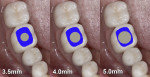 Fig 2. A comparison of several implant diameters to the emergence profile shape of a mandibular molar shows how much emergence in the restoration would be required to replicate the missing tooth.