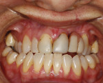 BEFORE. Intraoral view of patient before orthodontic therapy.