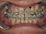 Fig 1. Final evaluation of midline and restorative space for the final prosthesis before restorative treatment and debonding. (Orthodontics: David C. McReynolds, DDS, MS, Keller, Texas)