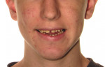 Fig 10. Pre- and post-treatment smile comparison. The treatment achieved a significant occlusal change and smile makeover. Additionally, the patient's profile appearance (not shown) was improved from the use of the aligners, decreasing the vertical jaw relationship and contributing to the autorotation of the mandible, thus eliminating the need for orthognathic surgery. (Restorative dentistry: Gregory E. Morgan, DDS, Fresno, California) Before doing additional restorative work, refinement aligners can be used to address the maxillary diastema due to the incisive frenum attachment, and posterior occlusal preparation can be performed before completion of the full-mouth rehabilitation.