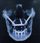 Fig 8. CBCT scan (cranial view) of restored case with zygomatic, pterygoid, vomer, and standard dental implants.