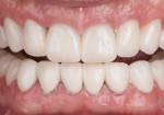Fig 14. Discoloration masked with layered 3Y zirconia crowns.