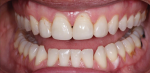 Comparison of pre- and postoperative retracted, full mouth views.