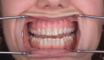 Fig 4. A present-day pre-operative photograph of the patient reveals incisor discoloration, her chief complaint.