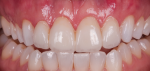 Fig 5. A provisional, or trial smile, allows the patient and restorative team to agree on the approach to the case.